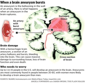 what is an aneurysm - traumatic brain injury | shoulder season, Human Body