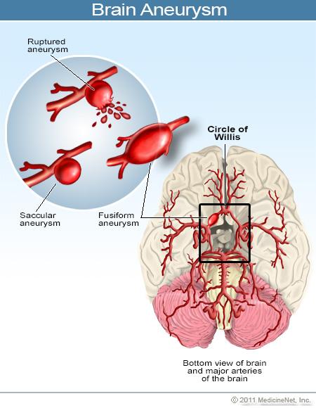 2011-brain-aneurysm